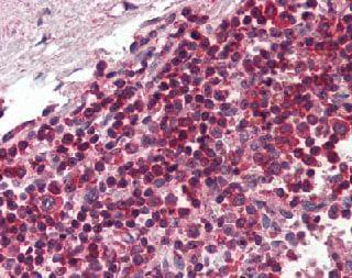 Immunohistochemistry (Formalin/PFA-fixed paraffin-embedded sections) - Anti-TLR8 antibody [44C143] (ab85859)