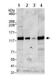 Western blot - Anti-ZNF574 antibody (ab85933)