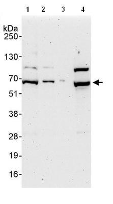 Western blot - Anti-EIF3D antibody (ab85951)