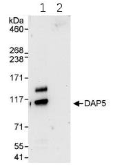 Immunoprecipitation - Anti-P97/DAP5 antibody (ab85963)