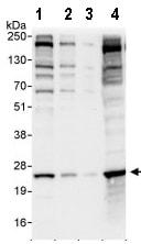 Western blot - Anti-eIF3K antibody (ab85968)
