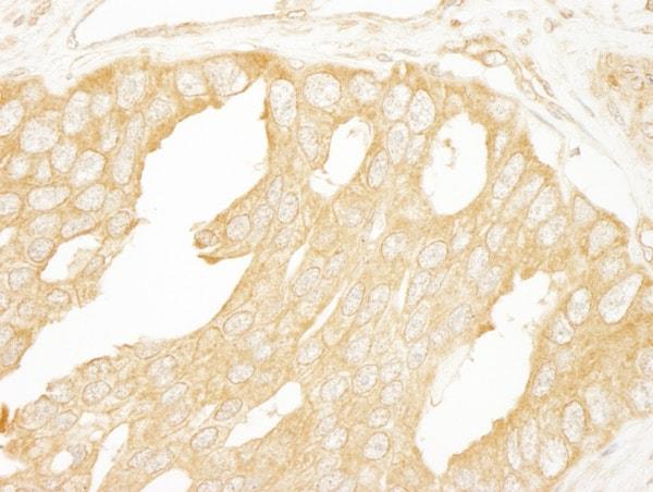 Immunohistochemistry (Formalin/PFA-fixed paraffin-embedded sections) - Anti-BRAF antibody (ab85972)