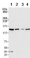 Western blot - Anti-RENT1/hUPF1 antibody (ab86057)