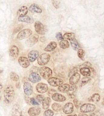 Immunohistochemistry (Formalin/PFA-fixed paraffin-embedded sections) - Anti-QSER1 antibody (ab86072)