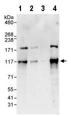 Western blot - Anti-DNA Polymerase Kappa/POLK antibody (ab86076)