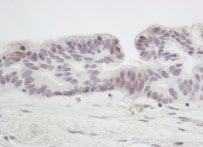 Immunohistochemistry (Formalin/PFA-fixed paraffin-embedded sections) - Anti-SMC6L1 antibody (ab86103)
