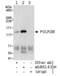 Immunoprecipitation - Anti-POLR3B antibody (ab86143)