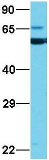 Western blot - Anti-CNOT6 antibody (ab86209)