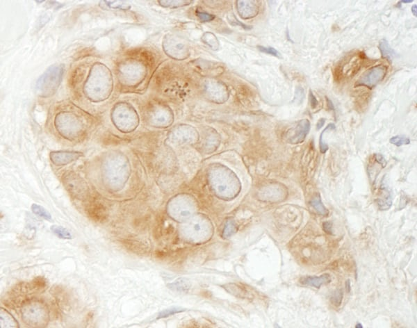 Immunohistochemistry (Formalin/PFA-fixed paraffin-embedded sections) - Anti-GIT1 antibody (ab86235)