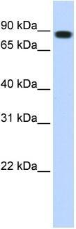 Western blot - Anti-STAT5b antibody (ab86273)
