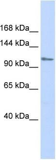Western blot - Anti-FOG1 antibody (ab86281)