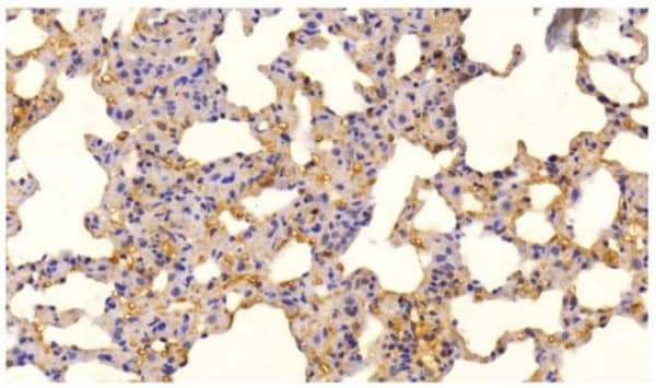 Immunohistochemistry (Formalin/PFA-fixed paraffin-embedded sections) - Anti-NF-kB p65 (phospho S536) antibody (ab86299)
