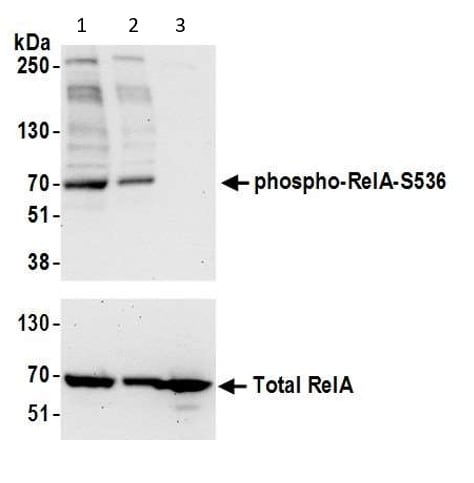Western blot - Anti-NF-kB p65 (phospho S536) antibody (ab86299)
