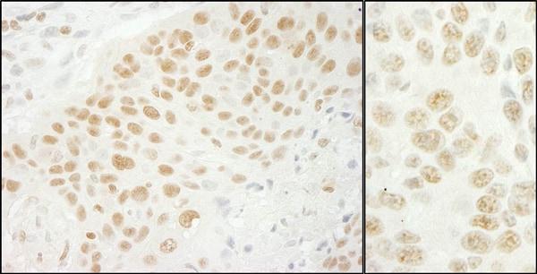 Immunohistochemistry (Formalin/PFA-fixed paraffin-embedded sections) - Anti-U2AF35/U2AF1 antibody (ab86305)