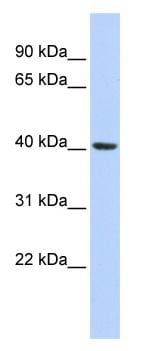 Western blot - Anti-Insig1 antibody (ab86350)