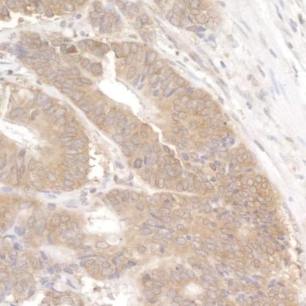 Immunohistochemistry (Formalin/PFA-fixed paraffin-embedded sections) - Anti-LARP1 antibody (ab86359)