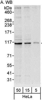 Western blot - Anti-INTS6 antibody (ab86369)