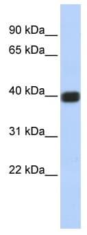 Western blot - Anti-Cx36 antibody (ab86408)