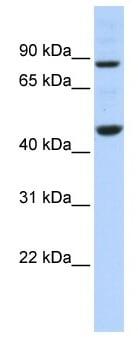 Western blot - Anti-PME-1 antibody (ab86409)