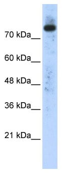 Western blot - Anti-Phospholipase D2 antibody (ab86437)