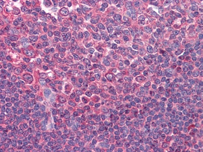 Immunohistochemistry (Formalin/PFA-fixed paraffin-embedded sections) - Anti-CD80 antibody [2A2] (ab86473)