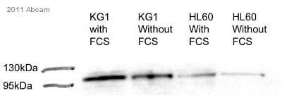 Western blot - Anti-ST18 antibody (ab86563)