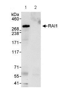 Immunoprecipitation - Anti-RAI1 antibody (ab86599)