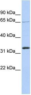 Western blot - Anti-GRHL2 antibody (ab86611)