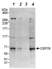 Western blot - Anti-CEP76 antibody (ab86613)