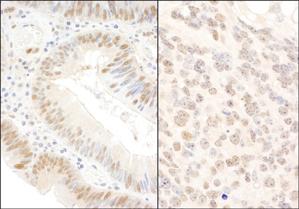 Immunohistochemistry (Formalin/PFA-fixed paraffin-embedded sections) - Anti-BOP1 antibody (ab86652)