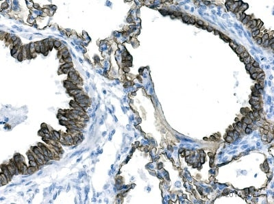 Immunohistochemistry (Formalin/PFA-fixed paraffin-embedded sections) - Anti-pan Cytokeratin antibody [AE1/AE3 + 5D3] (ab86734)