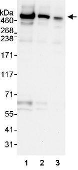 Western blot - Anti-UBR4/p600 antibody (ab86738)