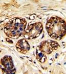 Immunohistochemistry (Formalin/PFA-fixed paraffin-embedded sections) - Anti-LAT antibody (ab86751)