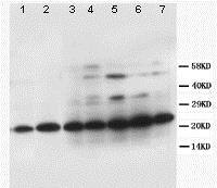 Western blot - Anti-TFPI2 antibody (ab86933)