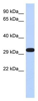 Western blot - Anti-DDAH2 antibody (ab87064)