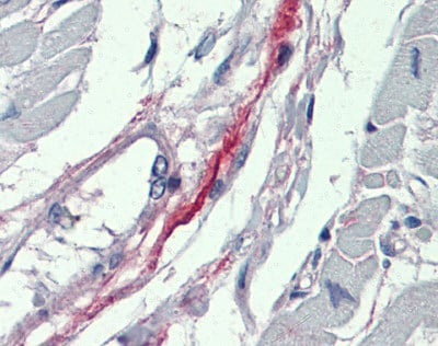 Immunohistochemistry (Formalin/PFA-fixed paraffin-embedded sections) - Anti-DDAH2 antibody (ab87064)