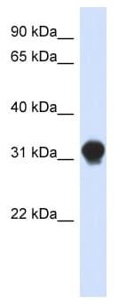 Western blot - Anti-DNALI1 antibody (ab87075)