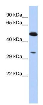 Western blot - Anti-PIK3IP1 antibody (ab87094)