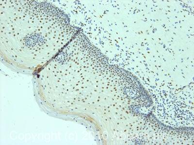Immunohistochemistry (Formalin/PFA-fixed paraffin-embedded sections) - Anti-53BP1 antibody (ab87097)