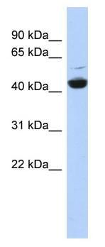Western blot - Anti-ATP6V1C1 antibody (ab87163)