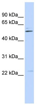 Western blot - Anti-TRIM35 antibody (ab87169)