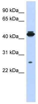 Western blot - Anti-PDIK1L antibody (ab87203)