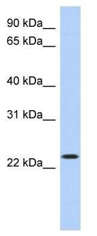Western blot - Anti-ATF3 antibody (ab87213)