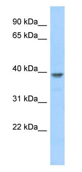Western blot - Anti-MED8 antibody (ab87222)