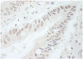 Immunohistochemistry (Formalin/PFA-fixed paraffin-embedded sections) - Anti-RFC3 antibody (ab87314)