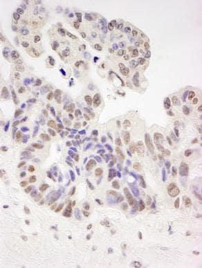 Immunohistochemistry (Formalin/PFA-fixed paraffin-embedded sections) - Anti-HIV TAT specific factor 1 antibody (ab87317)