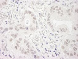 Immunohistochemistry (Formalin/PFA-fixed paraffin-embedded sections) - Anti-WSTF antibody (ab87325)