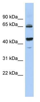 Western blot - Anti-PDE12 antibody (ab87738)