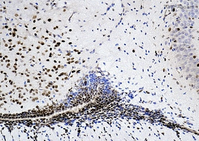Immunohistochemistry (Formalin/PFA-fixed paraffin-embedded sections) - Anti-SOX1 antibody (ab87775)