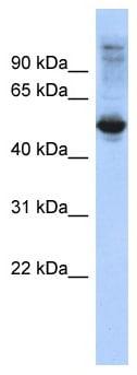 Western blot - Anti-FBXL16 antibody (ab87778)